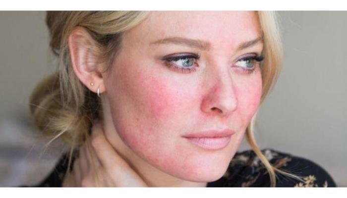 10 Penyebab Wajah Anda Menjadi Merah